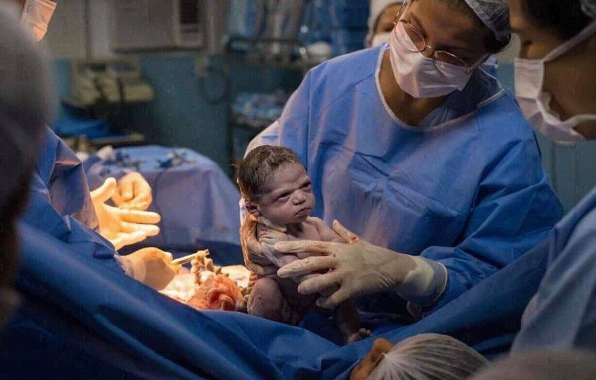 Foto de bebé recién nacida se hizo viral por su expresión de enojo