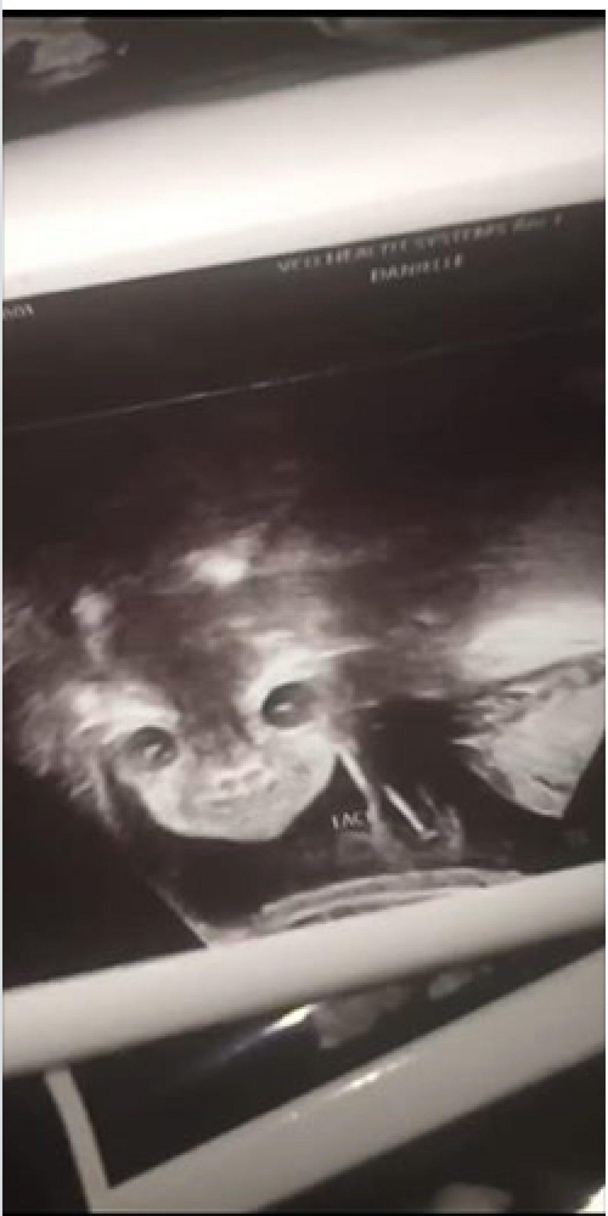 Captan aterradoras imágenes durante un ultrasonido