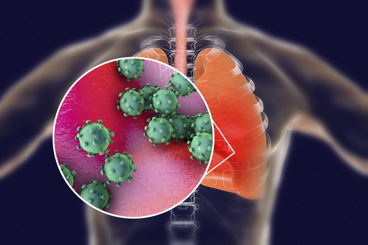 Anunciaron un nuevo tratamiento contra el coronavirus efectivo como prevención o en los primeros tramos de la enfermedad
