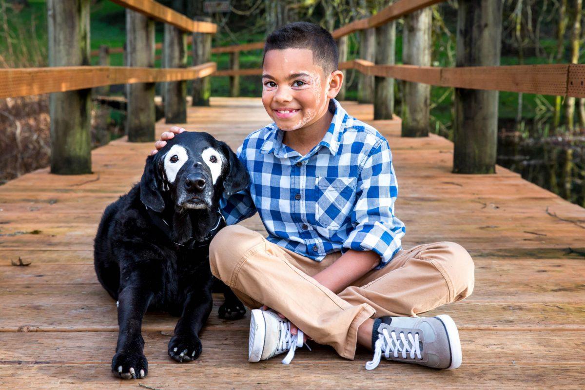 Niño conoce a un perro con su misma enfermedad y lo salva de la depresión