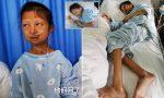 La joven que vivió 5 años a base de arroz desató una ola de indignación en China