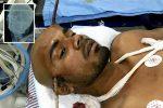 Cayó en un pozo, una barra de hierro le atravesó la cabeza y sobrevivió de milagro
