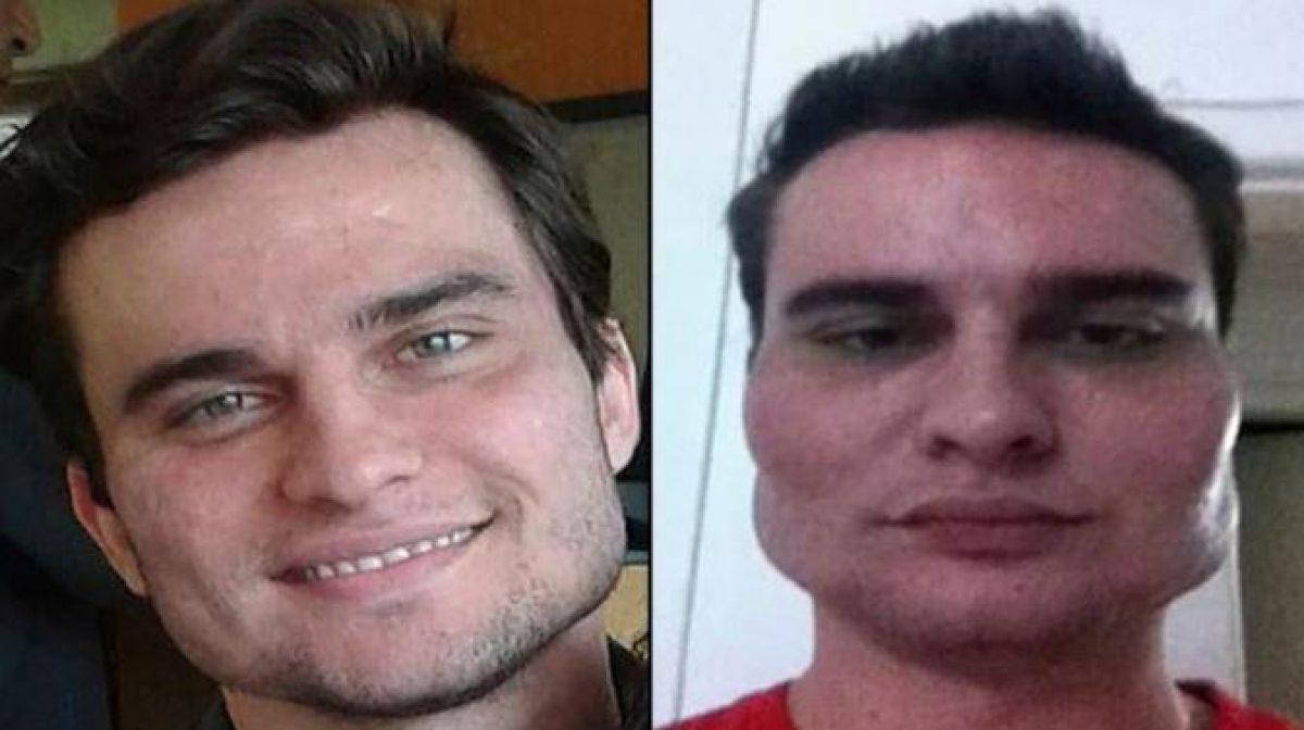 Alexandre Garzon, antes y después de someterse a una práctica estética con Wesley Murakami