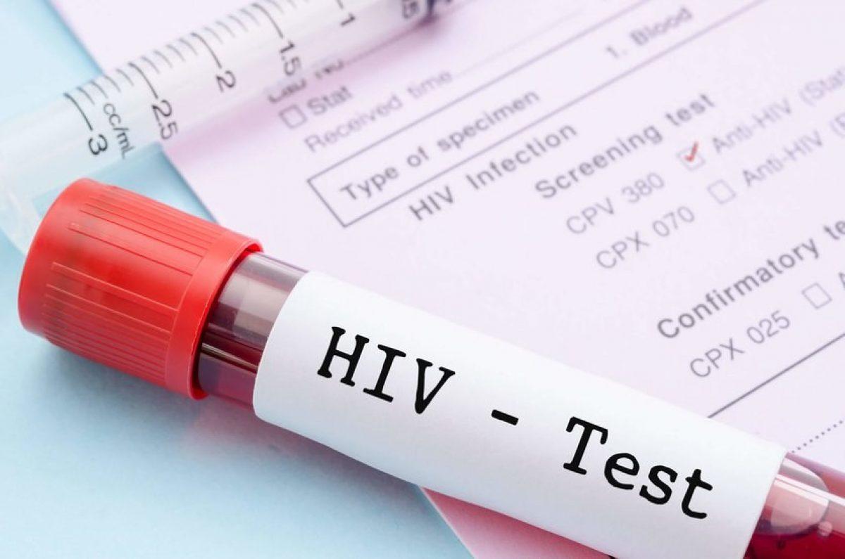 El objetivo para hallar la cura del VIH sería eliminar las células infectadas por el virus.