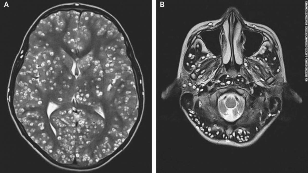 En las imágenes de resonancia magnética de la corteza cerebral y el tronco cerebral del paciente se pudieron apreciar quistes que causan daños.