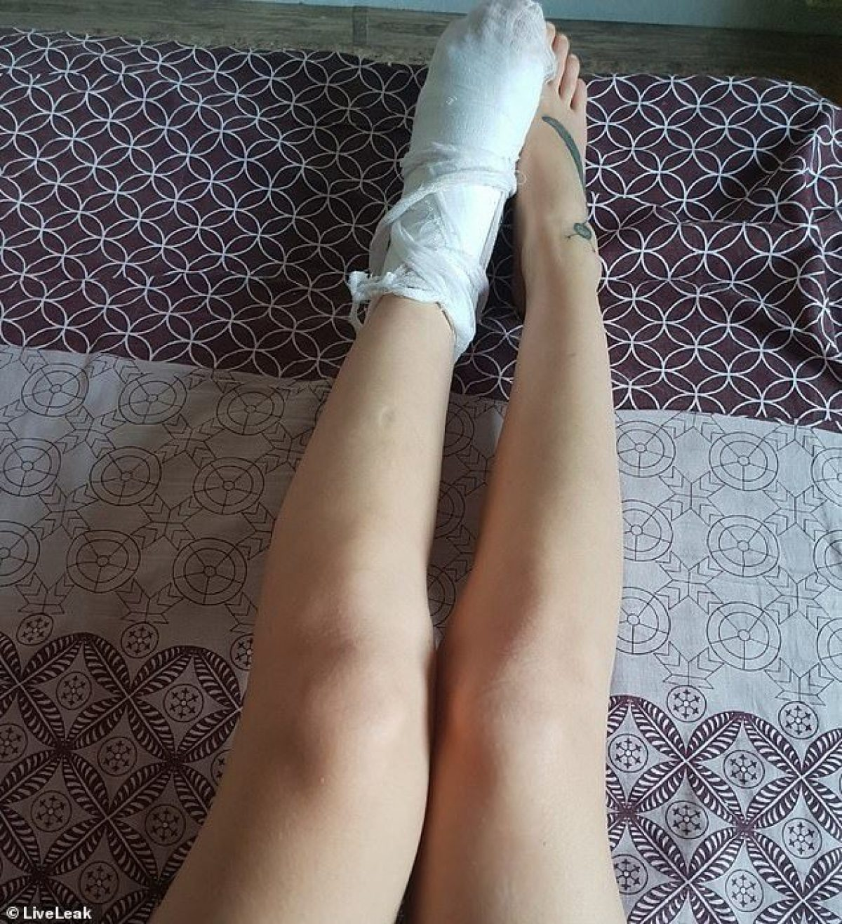 Aparecieron imágenes que mostraban el tobillo izquierdo fuertemente vendado de la mujer